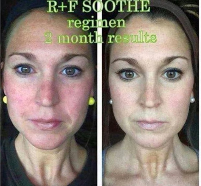 My Rodan and Fields Story - Taylor Walker Fit