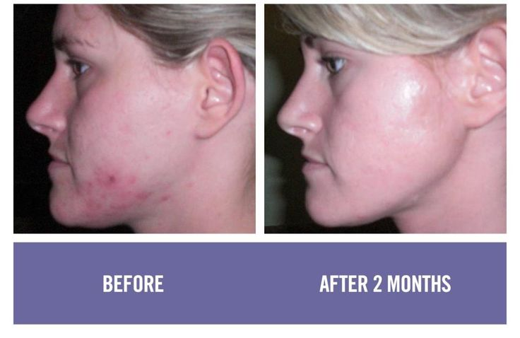 Unblemish by Rodan and Fields taylorwalkerfit.myrandf.com